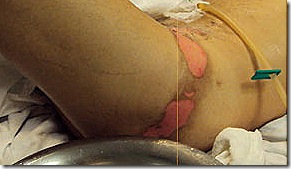 Detail of severe burns on the tortured husband's legs