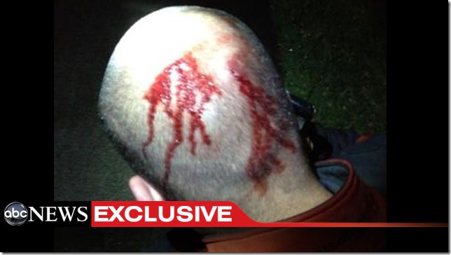 george_zimmerman_head_right-after-shooting