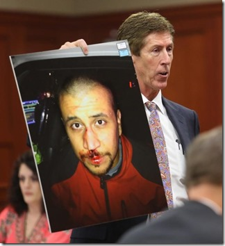 usa-george-zimmerman-trial-bloodied-face